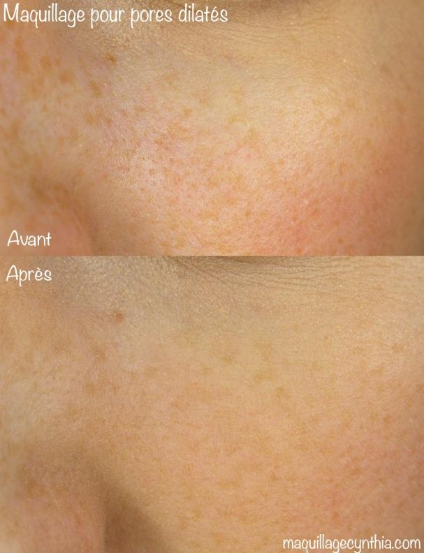Maquillage pores dilatés peau grasse